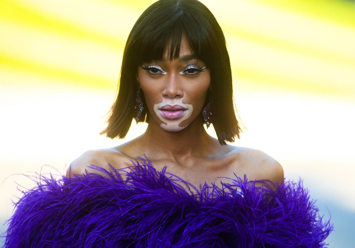 Winnie Harlow is seen outside of the 2019 CFDA fashion awards at the Brooklyn Museum on June 3, 2019 in the Brooklyn borough of New York City
