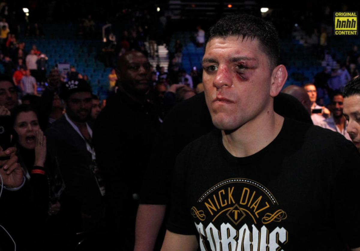 Nick Diaz after losing to Anderson Silva