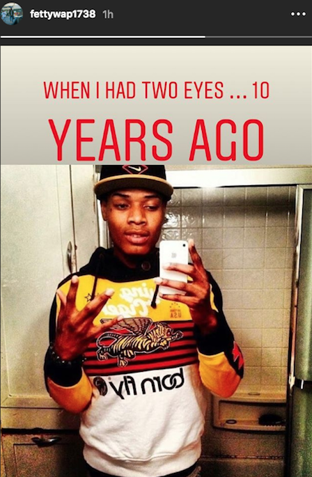 "Fetty Wap Shares Throwback Photo From When He ""Had Two Eyes"""