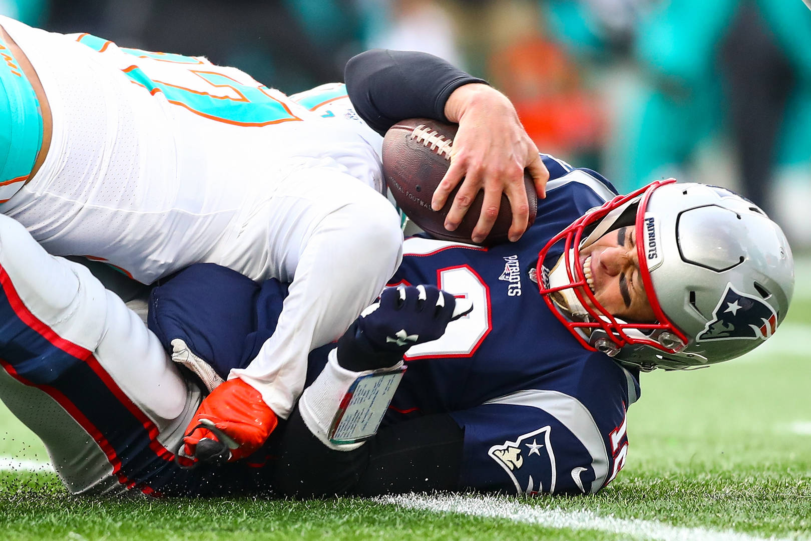 Tom Brady Reacts To Embarrassing Loss Against The Dolphins